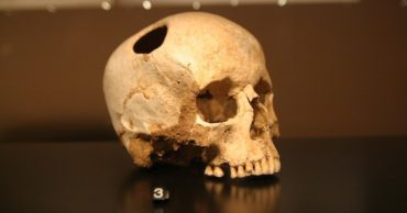 Why What You Know About Trepanning Is Probably Wrong